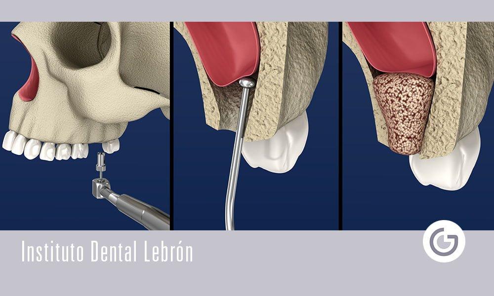 ¿En qué consiste la elevación de seno maxilar?