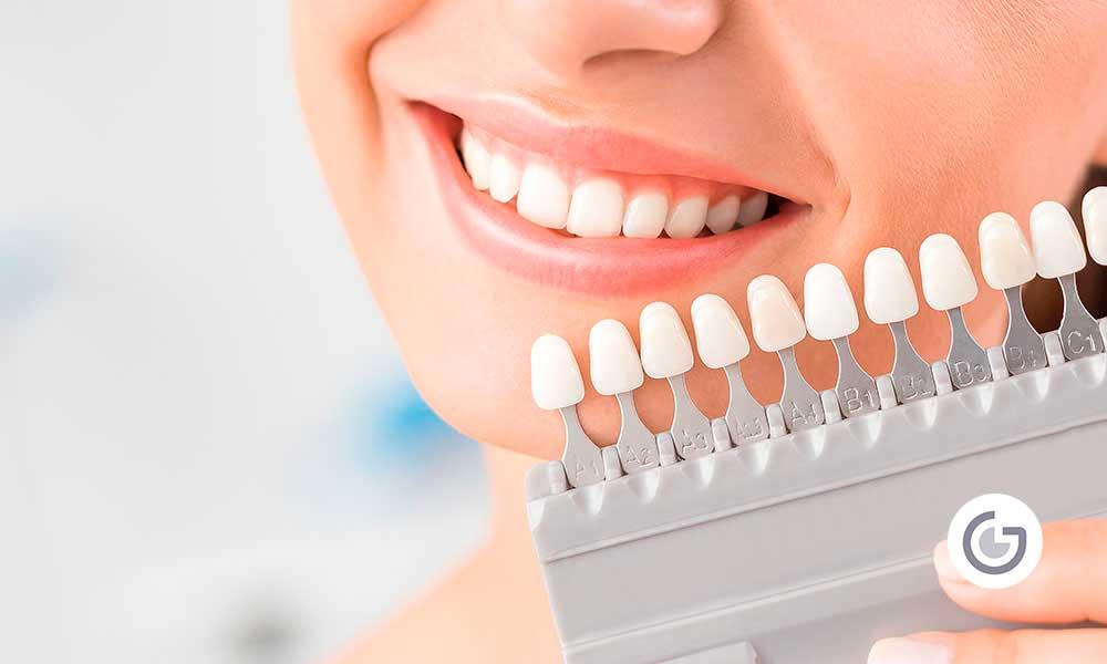 Preguntas y respuestas frecuentes sobre los blanqueamientos dentales