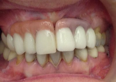 antes-despues-clinica-dental-sevilla-57