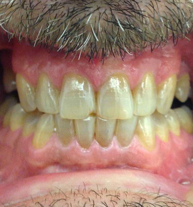 dientes antes y después del blanqueamiento