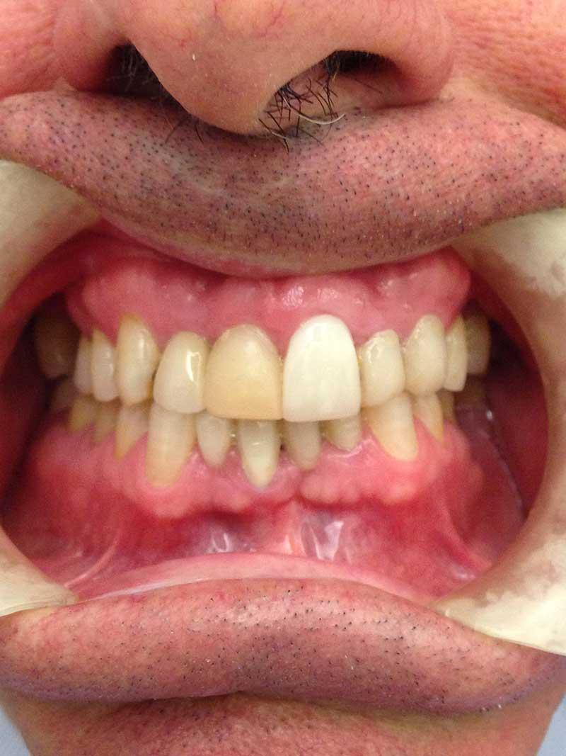 Dientes antes y después de blanqueamiento, fotos de dientes antes y despues