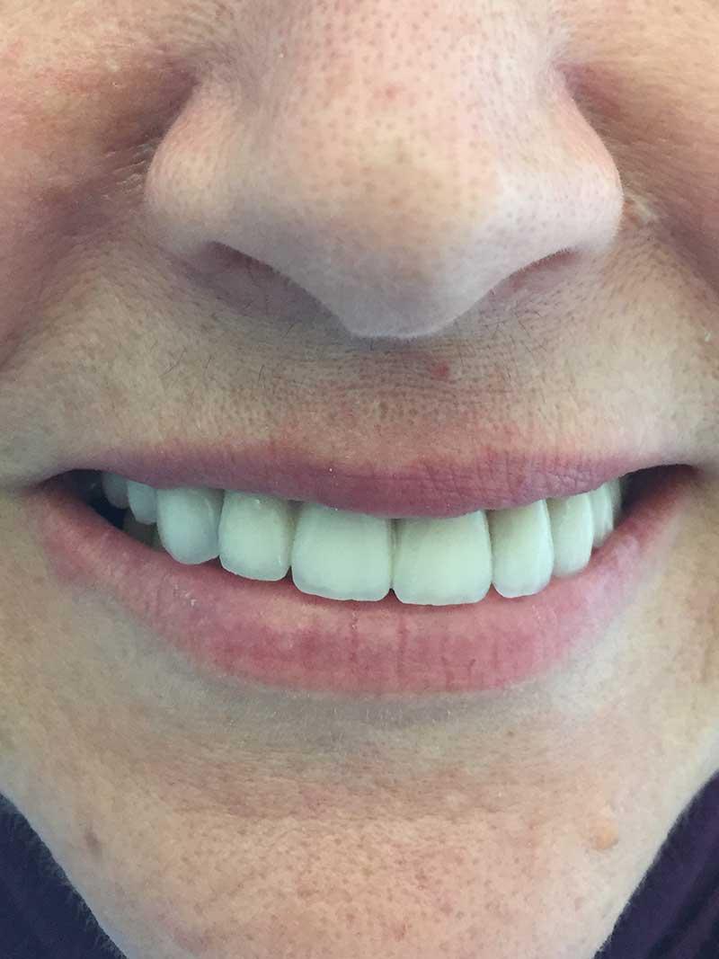 tratamientos dentales antes y después, dientes arreglados antes y después