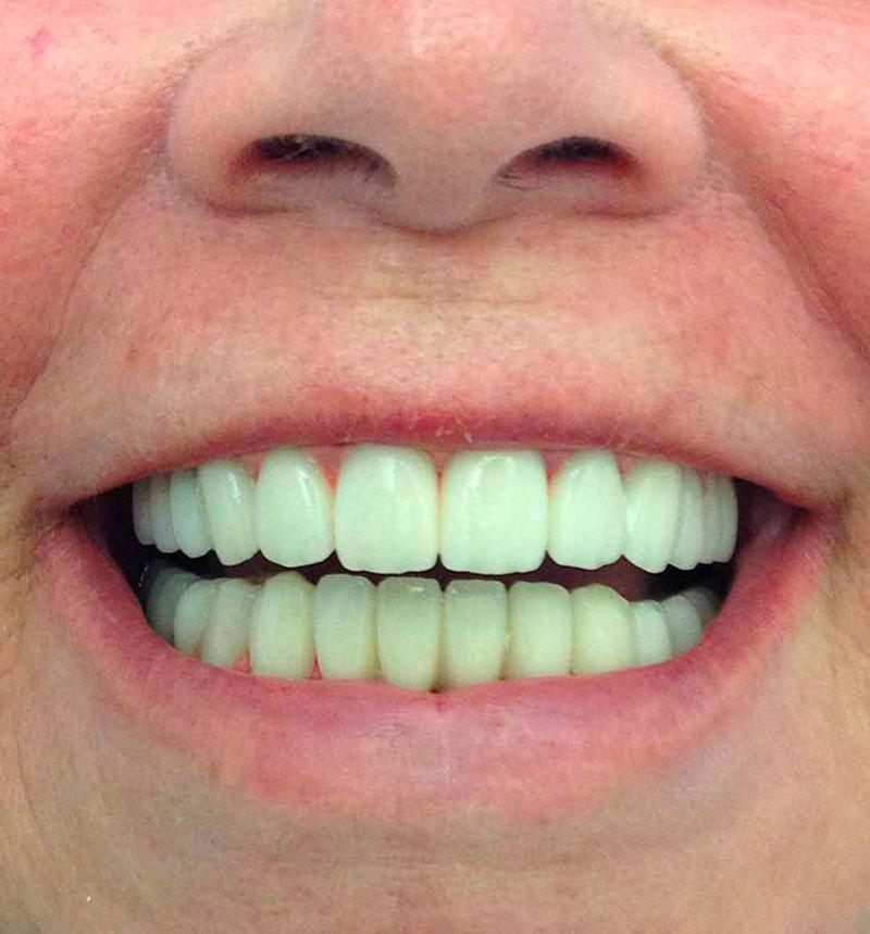 Fundas dentales antes y después