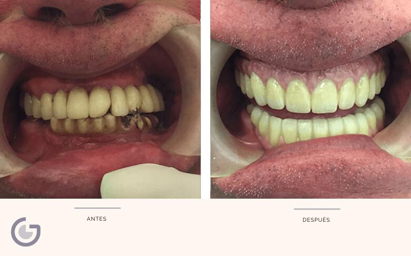 caso real de los mejores implantes dentales en Sevilla