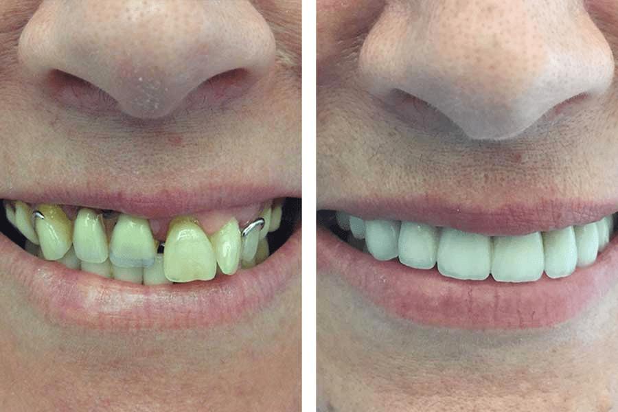 Tratamientos de odontología estética, caso real tras un tratamiento de odontología estética, dientes antes y después