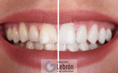 Blanqueamiento dental con láser
