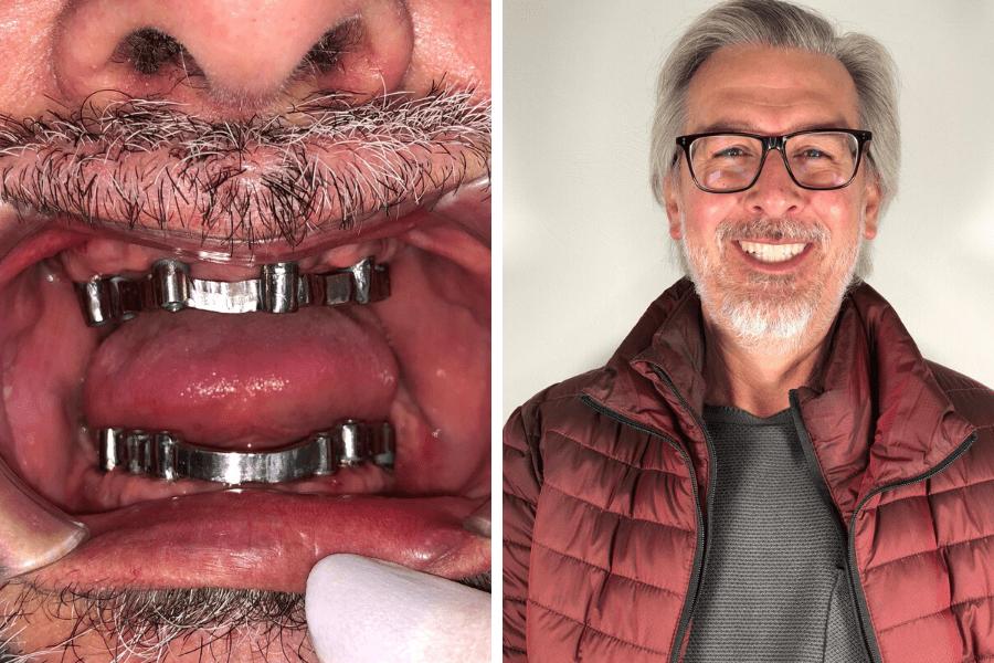 Antes y después del tratamiento tratamiento de implantes dentales, caso real de un paciente tras su tratamiento de implantes dentales en Instituto Dental Lebrón