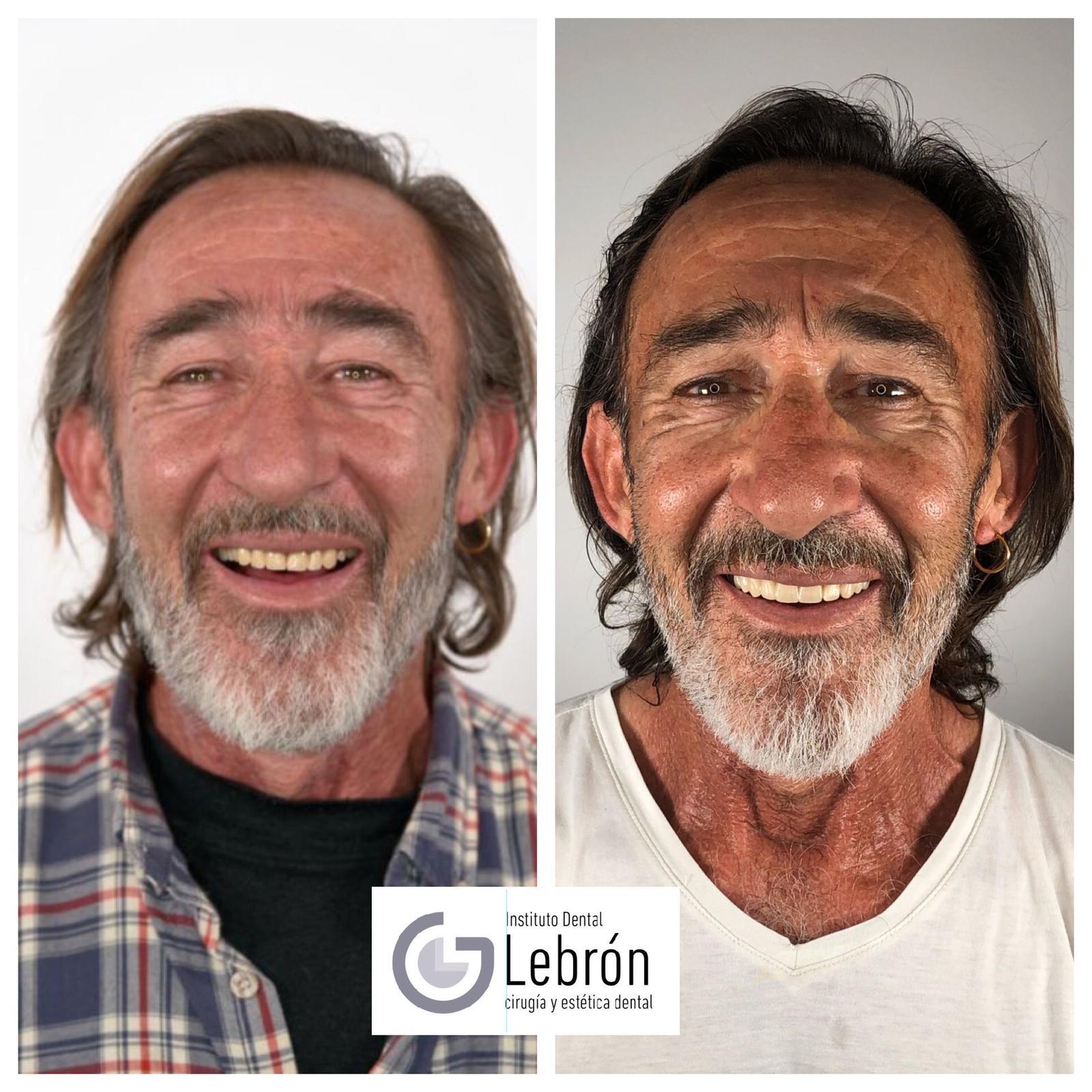 cirugía guiada para implantes dentales, caso real de implantes con cirugía planificada, Cirugía guiada antes y después