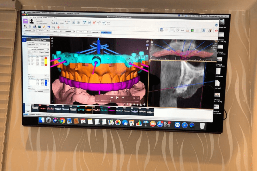 cirugía guiada por ordenador, cirugía guiada para implantes dentales, cirugía guiada en 3d, implantes dentales con cirugía guiada