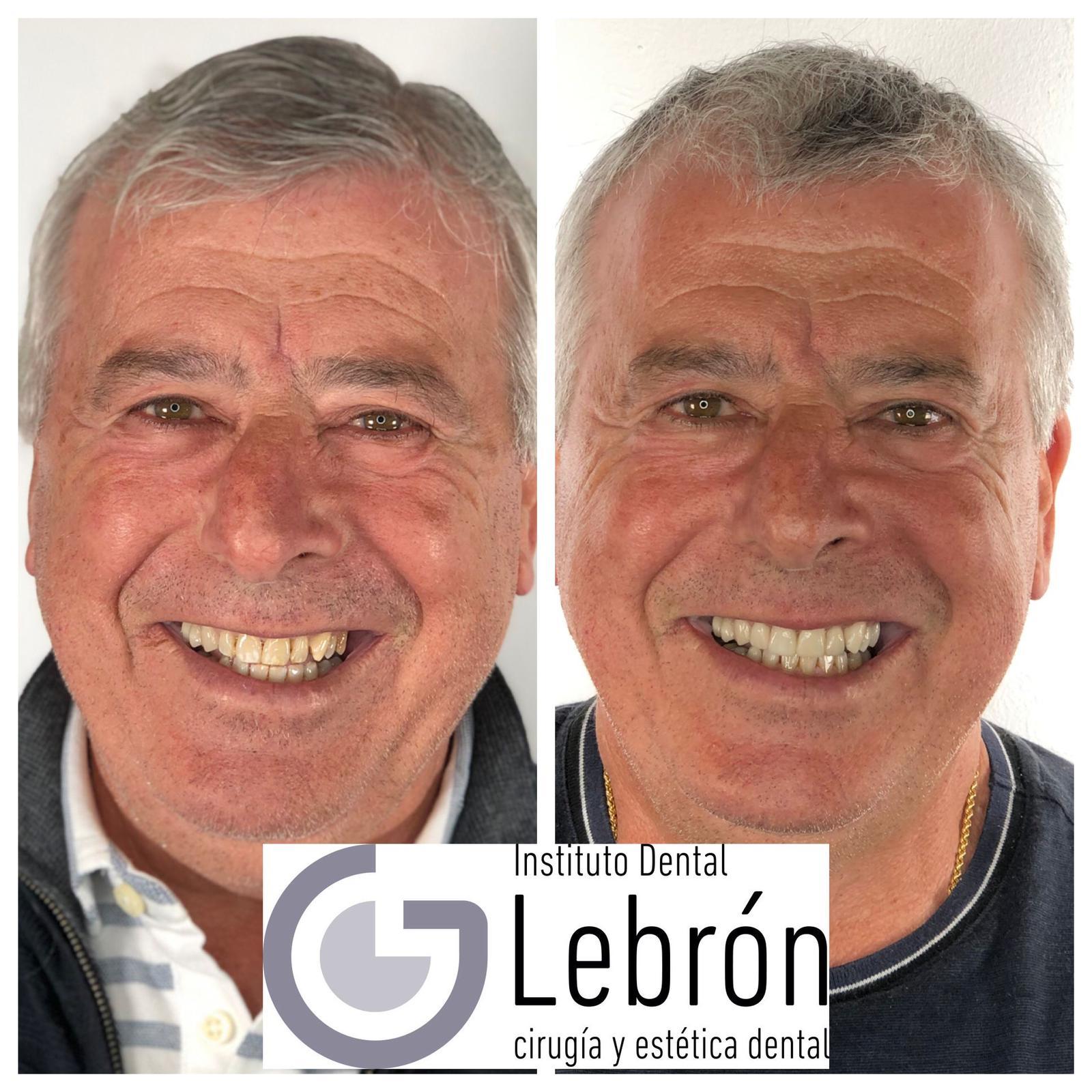 caso real de un paciente tras su tratamiento de carillas dentales, carillas dentales antes y después