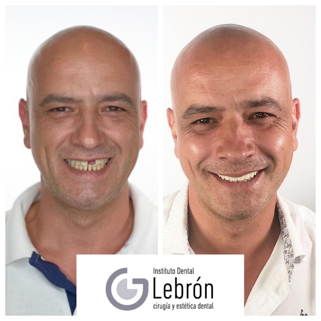 caso real de implantología dental en Instituto Dental Lebrón