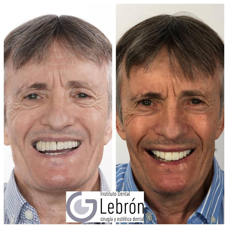caso real de un paciente tras colocación de implantes dentales