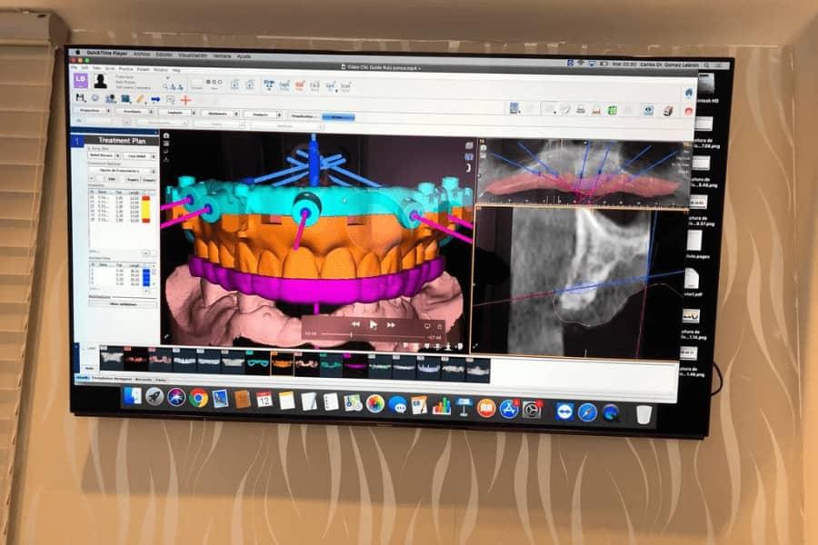cirugía guiada por ordenador para implantes dentales 2021