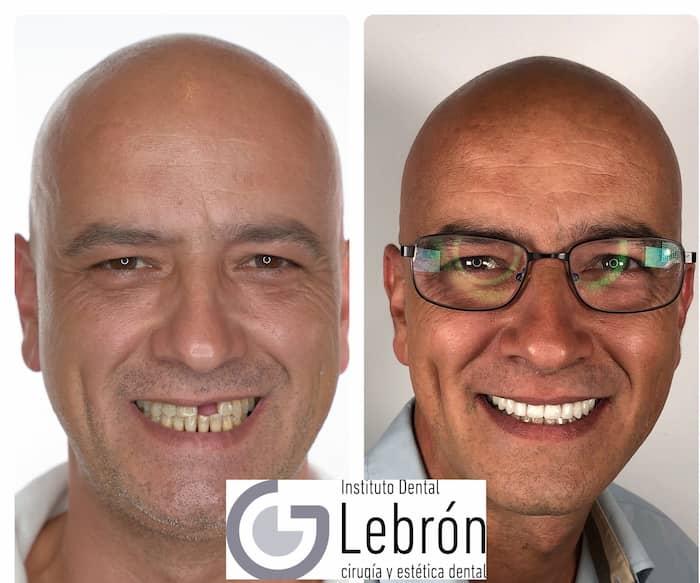 Como colocar un implante dental, antes y después de colocación de un implante dental